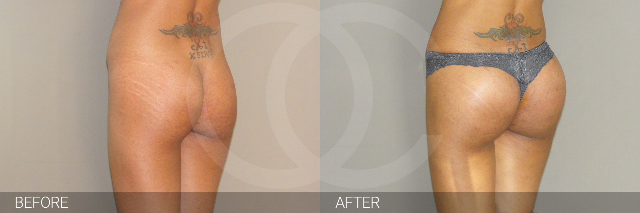 Buttock Augmentation BUTT UPLIFT ante/post-op II