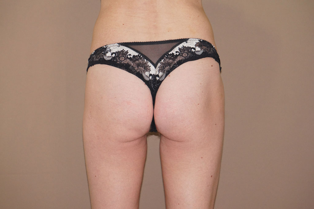 Buttock Augmentation Gluteal implants ante-op profil