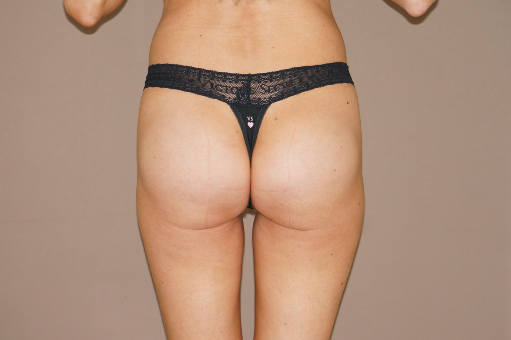 Buttock Augmentation Gluteal implants post-op profil