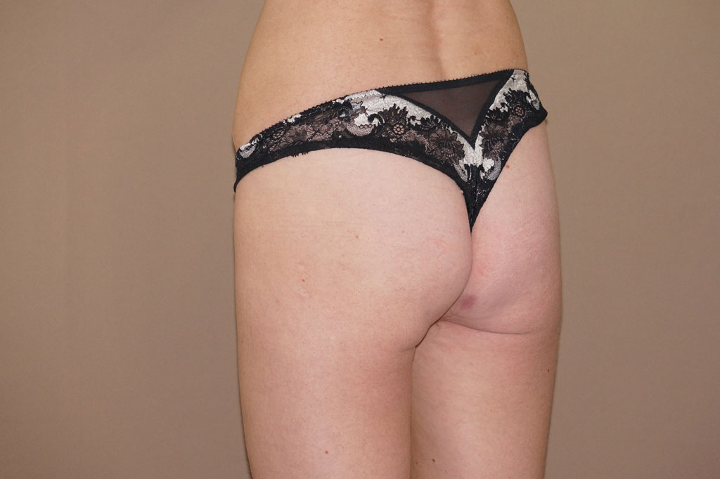 Buttock Augmentation Gluteal implants ante-op retro/lateral