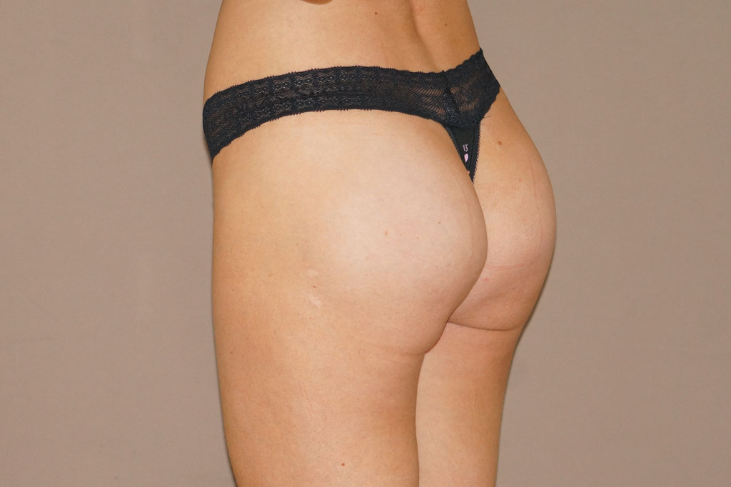 Buttock Augmentation Gluteal implants post-op retro/lateral