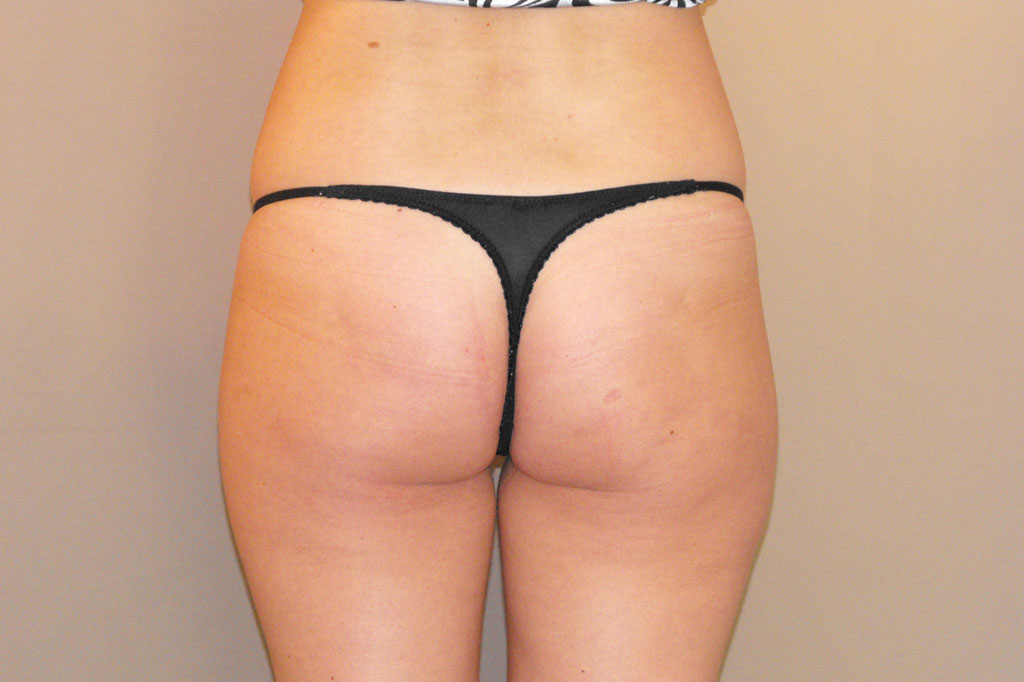 Buttock Augmentation  before forntal