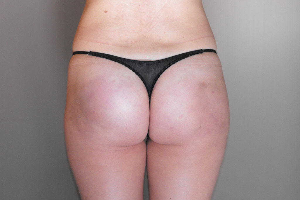 Buttock Augmentation  after frontal