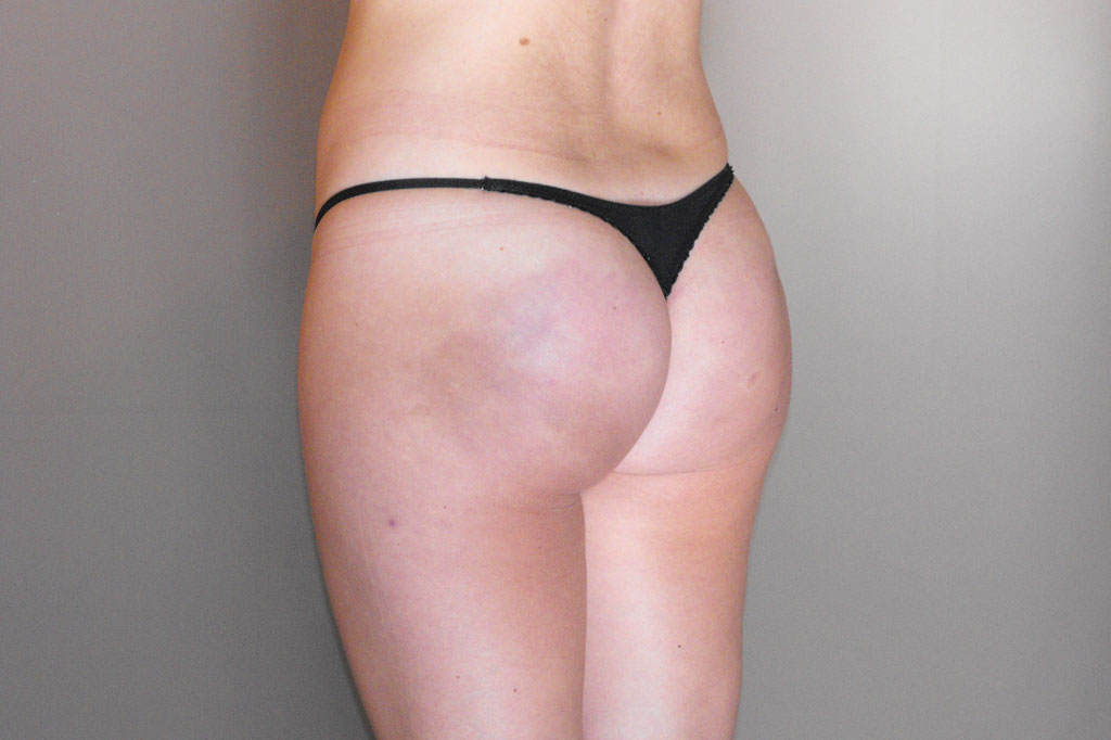 Buttock Augmentation AUMENTING THE BUTTOCK after profile
