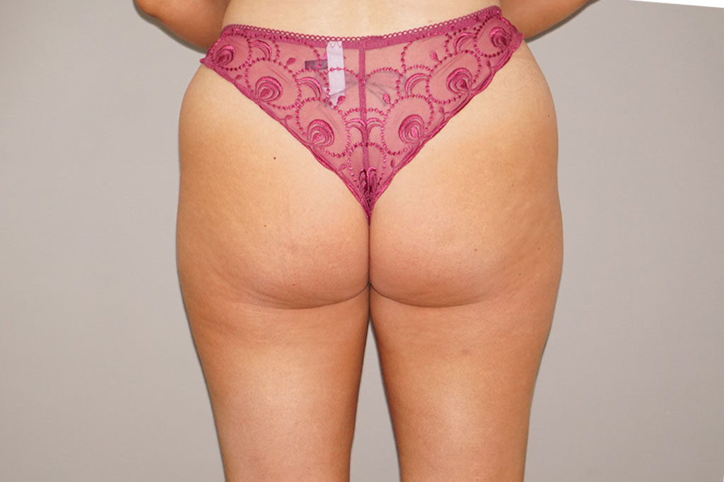 Buttock Augmentation Gluteal Fat Grafting BBL before forntal