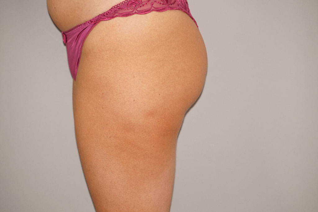 Buttock Augmentation Gluteal Fat Grafting BBL before side