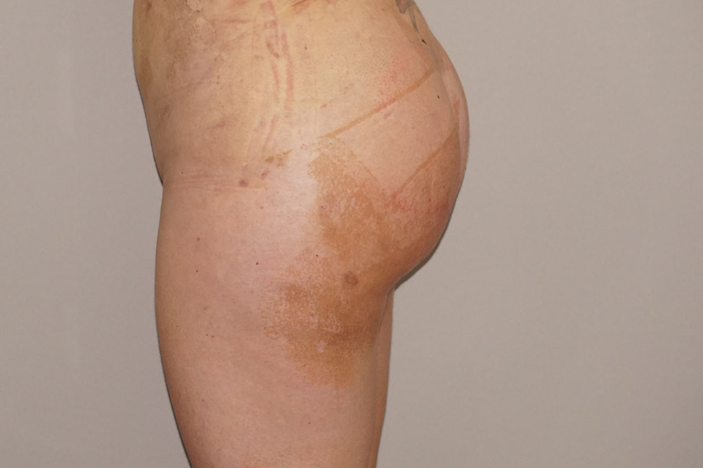 Buttock Augmentation Gluteal Fat Grafting BBL after side