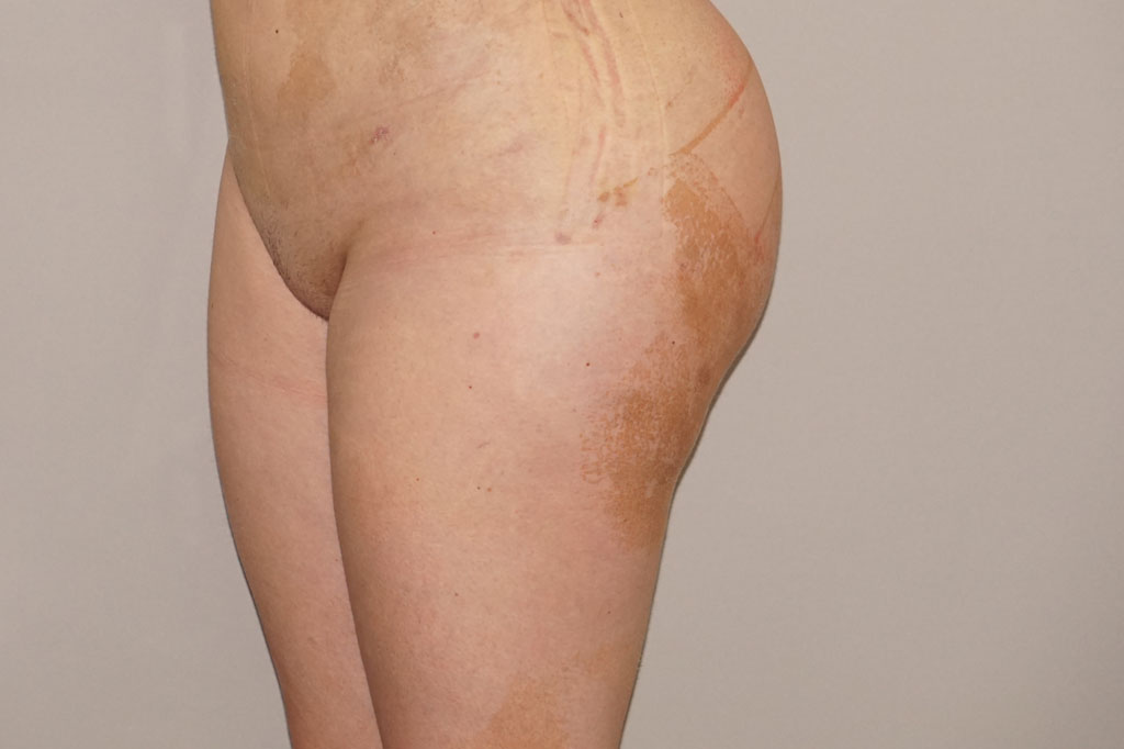 Buttock Augmentation Gluteal Fat Grafting BBL after profile