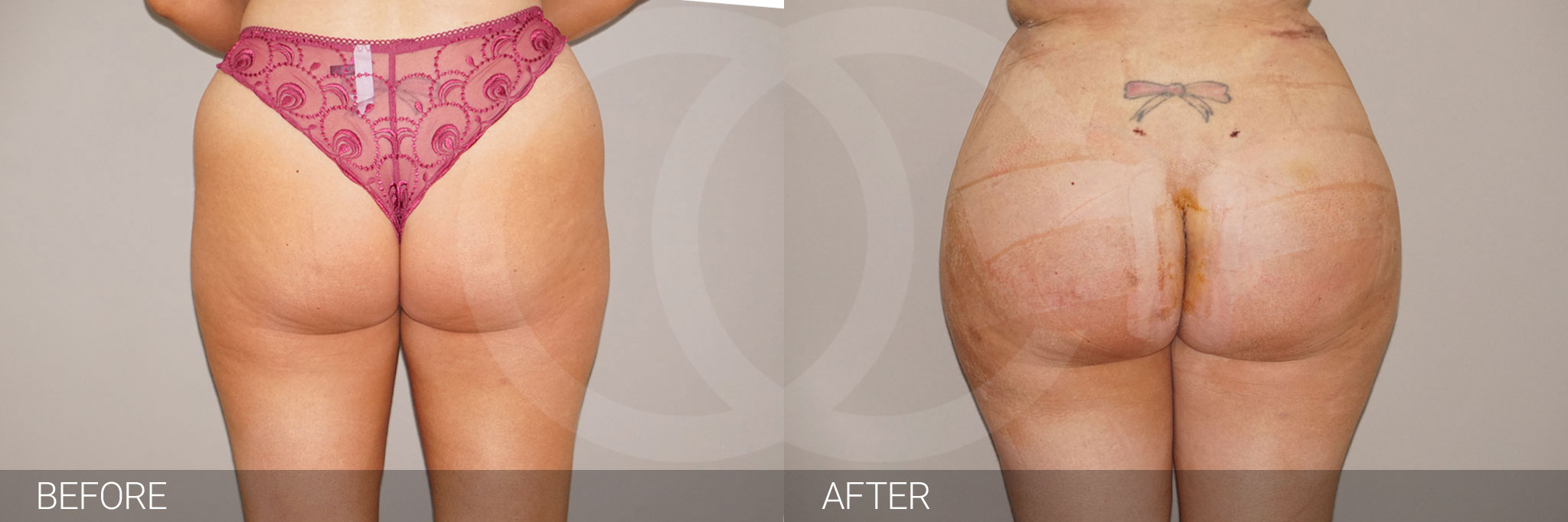Buttock Augmentation Gluteal Fat Grafting BBL ante/post-op I