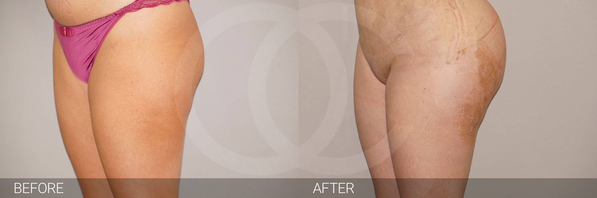 Buttock Augmentation Gluteal Fat Grafting BBL ante/post-op III