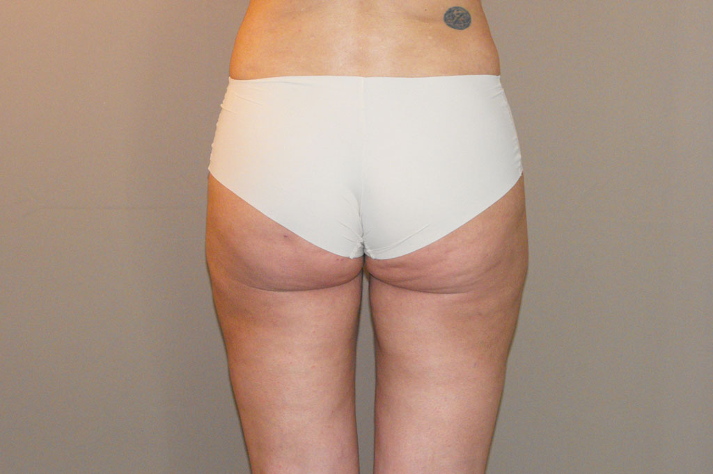 Buttock Augmentation BBL Brazilian Butt Lift before forntal
