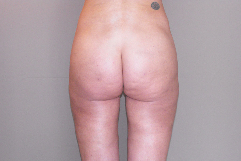 Buttock Augmentation BBL Brazilian Butt Lift after frontal