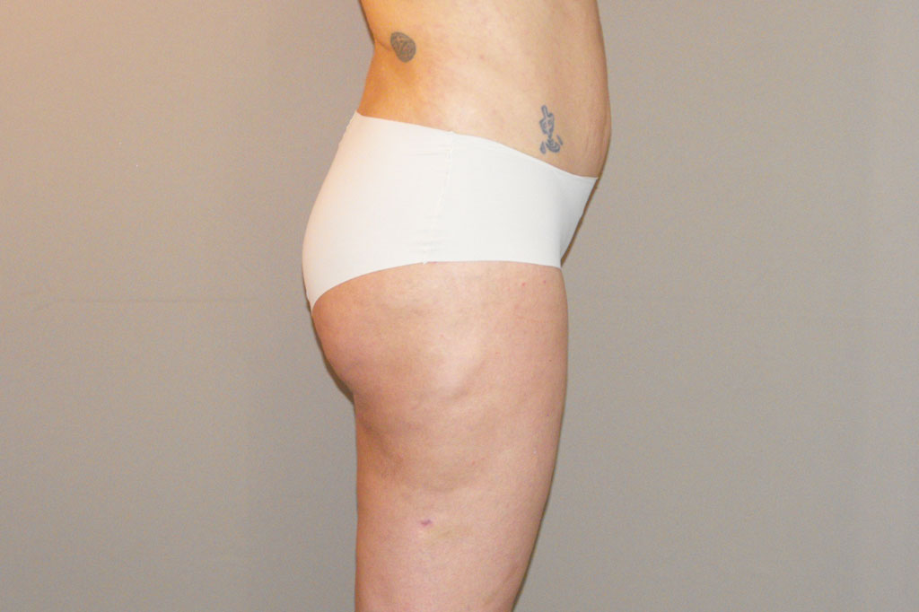Buttock Augmentation BBL Brazilian Butt Lift before profile