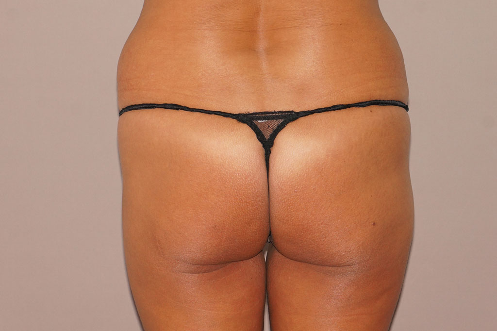Buttock Augmentation BBL Fat transfer before forntal