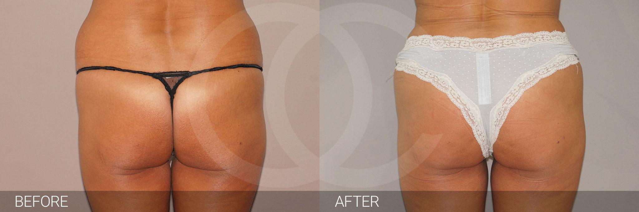 Buttock Augmentation BBL Fat transfer ante/post-op I