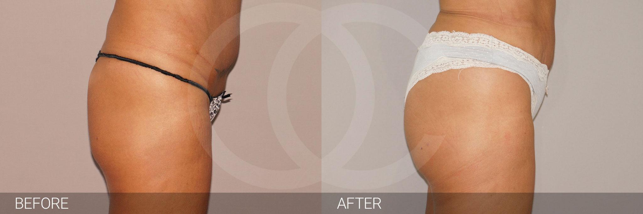 Buttock Augmentation BBL Fat transfer ante/post-op III