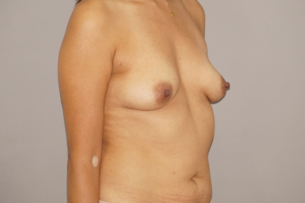 Fat grafting Fat transfer to breast ante-op profil