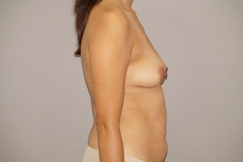 Fat grafting Fat transfer to breast before side