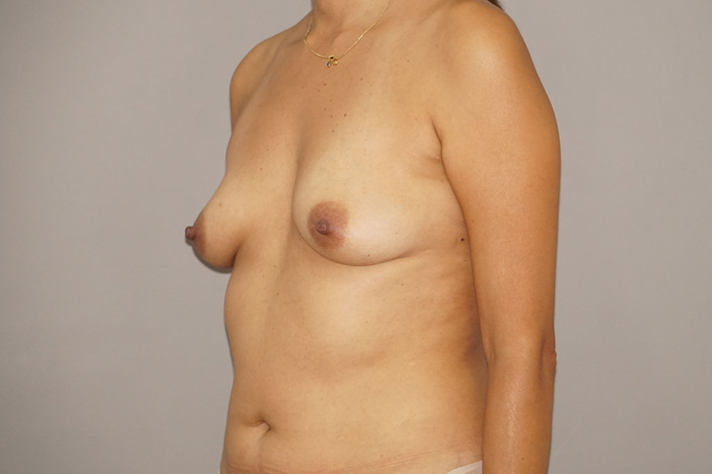 Fat grafting Fat transfer to breast ante-op retro/lateral