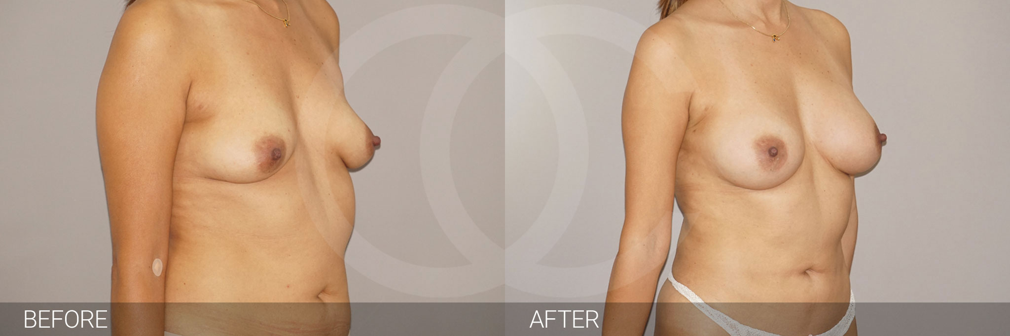 Fat grafting Fat transfer to breast ante/post-op I