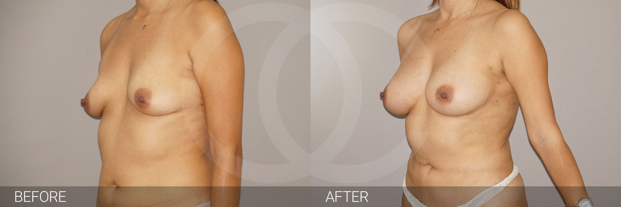 Fat grafting Fat transfer to breast ante/post-op III