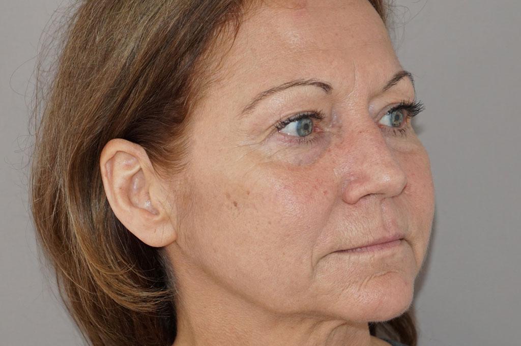 Körperfetttransplantation PAVE Gesichtslift before side
