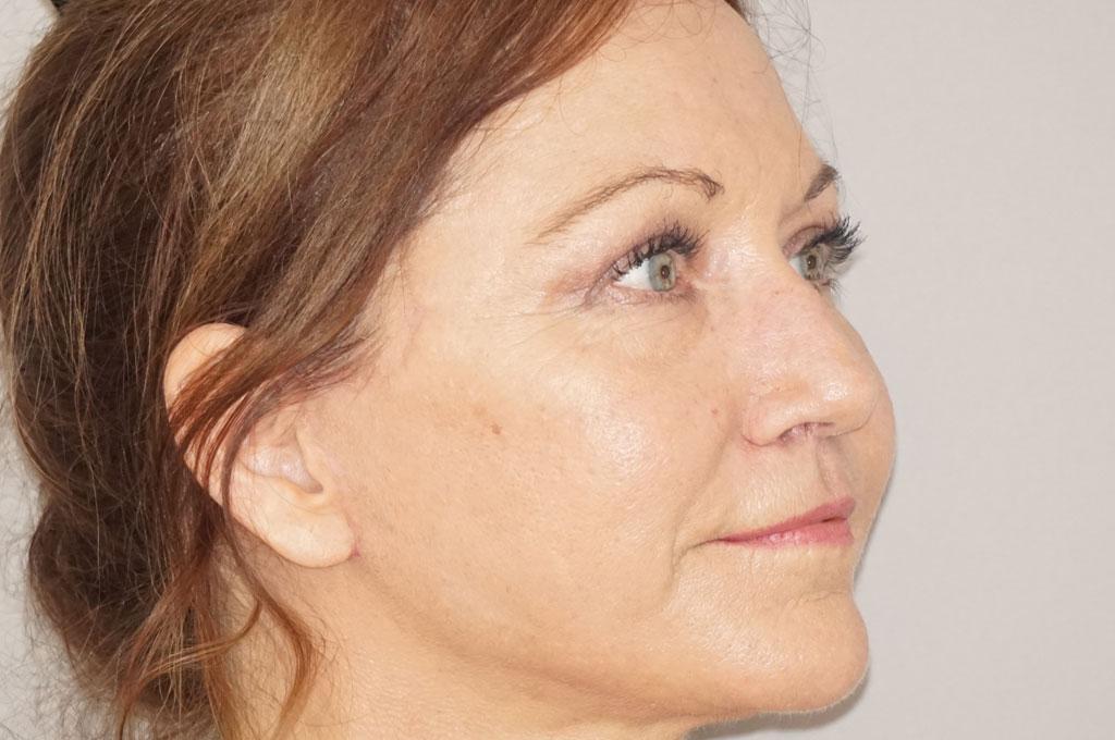 Körperfetttransplantation PAVE Gesichtslift after side