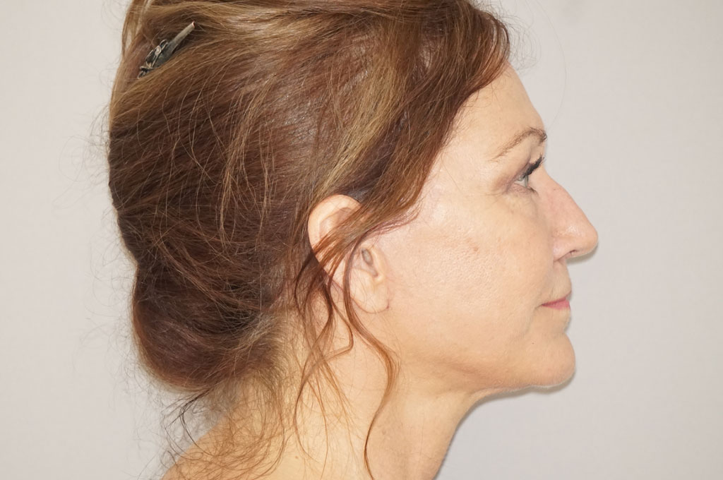 Fat grafting Fat transfer to face post-op retro/lateral