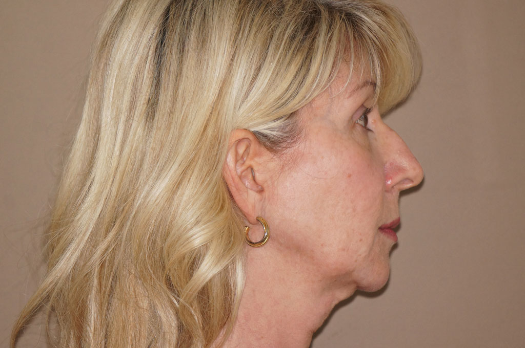 Fat grafting Facial fat transfer ante-op retro/lateral