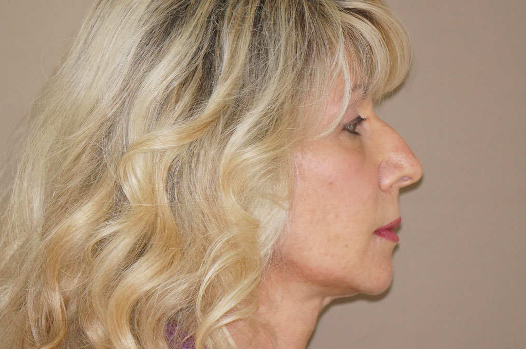 Lipofilling 4 after profile
