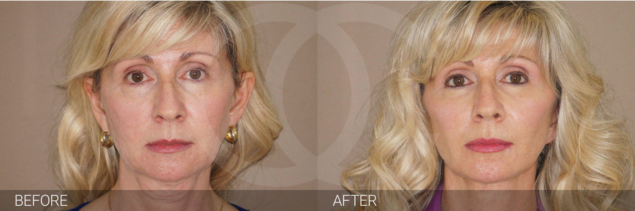 Fat grafting Facial fat transfer ante/post-op I