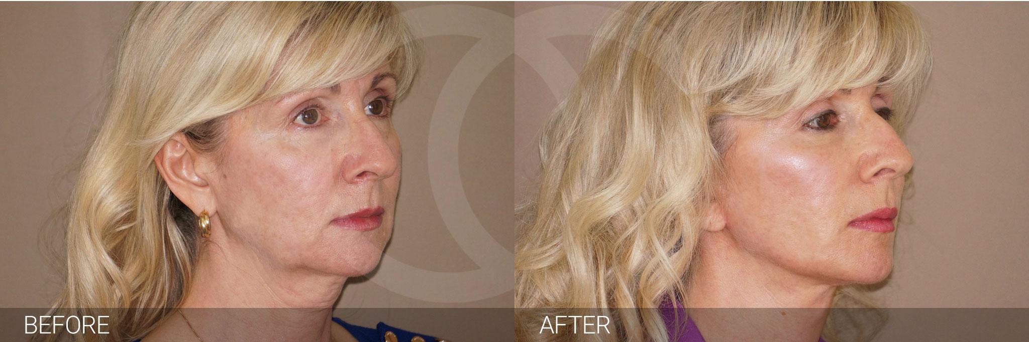 Fat grafting Facial fat transfer ante/post-op II