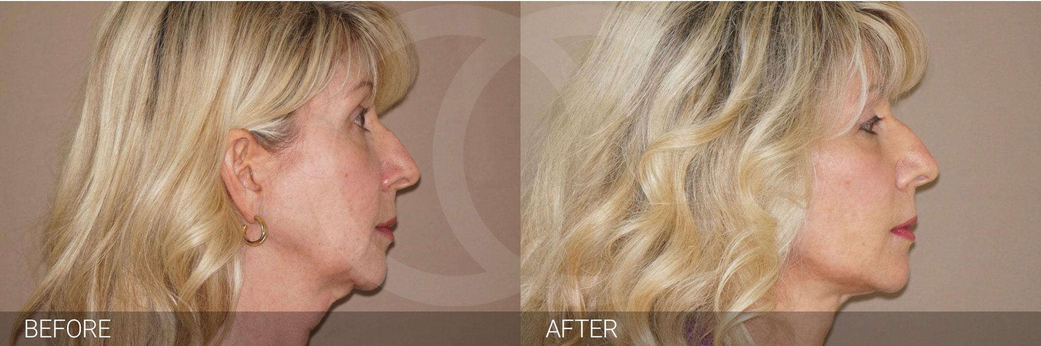 Fat grafting Facial fat transfer ante/post-op III