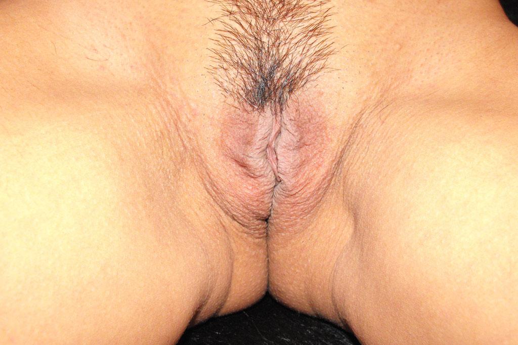 Labioplastia Reducción de labios before forntal