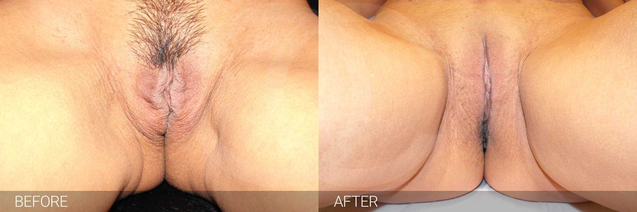Labiaplasty Inner labia reduction ante/post-op I