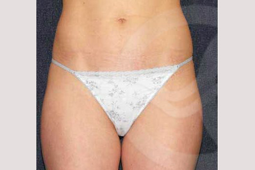 Liposuction INNER AND OUTER THIGHS before forntal