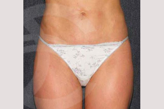 Liposuction INNER AND OUTER THIGHS after frontal