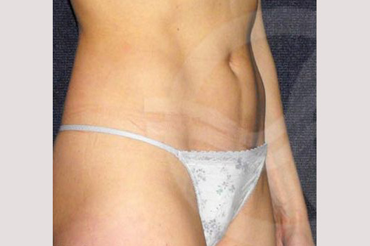 Liposuction INNER AND OUTER THIGHS before side