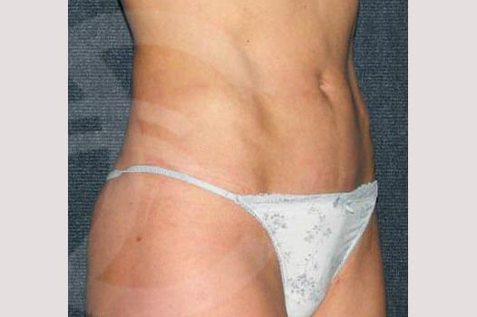 Liposuction INNER AND OUTER THIGHS after side