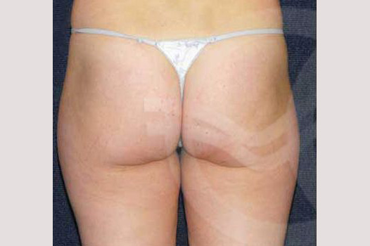 Liposuction INNER AND OUTER THIGHS before profile