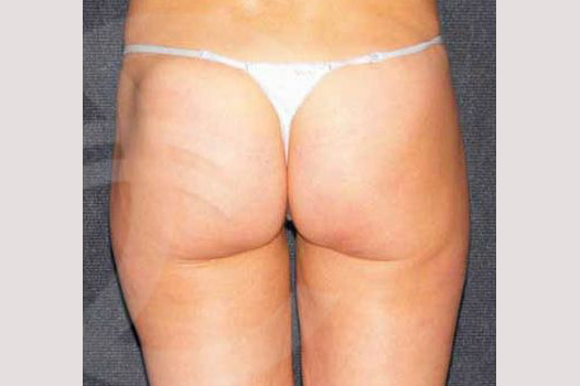 Liposuction INNER AND OUTER THIGHS after profile