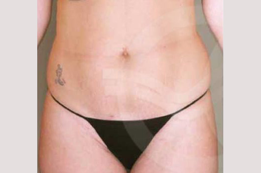 Liposuction ABDOMEN, WAIST AND LEGS before forntal