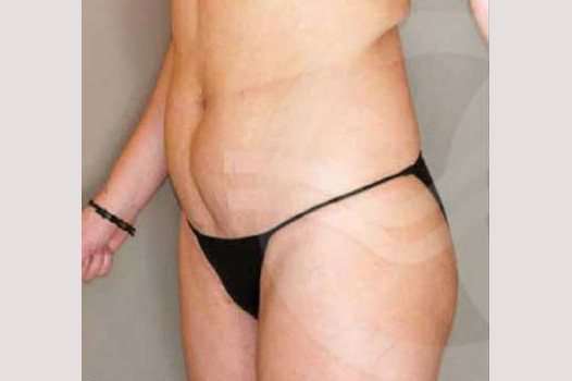 Liposuction ABDOMEN, WAIST AND LEGS before side