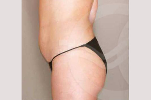 Liposuction ABDOMEN, WAIST AND LEGS before profile