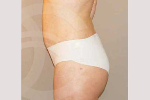 Liposuction ABDOMEN, WAIST AND LEGS after profile