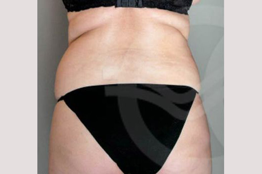Liposuction BUTTOCKS before forntal