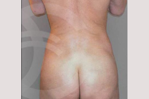 Liposuction BUTTOCKS after frontal
