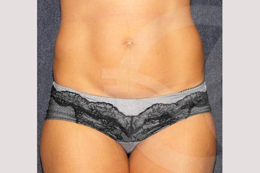 Liposuction FLANKS AND STOMACH AREA before forntal
