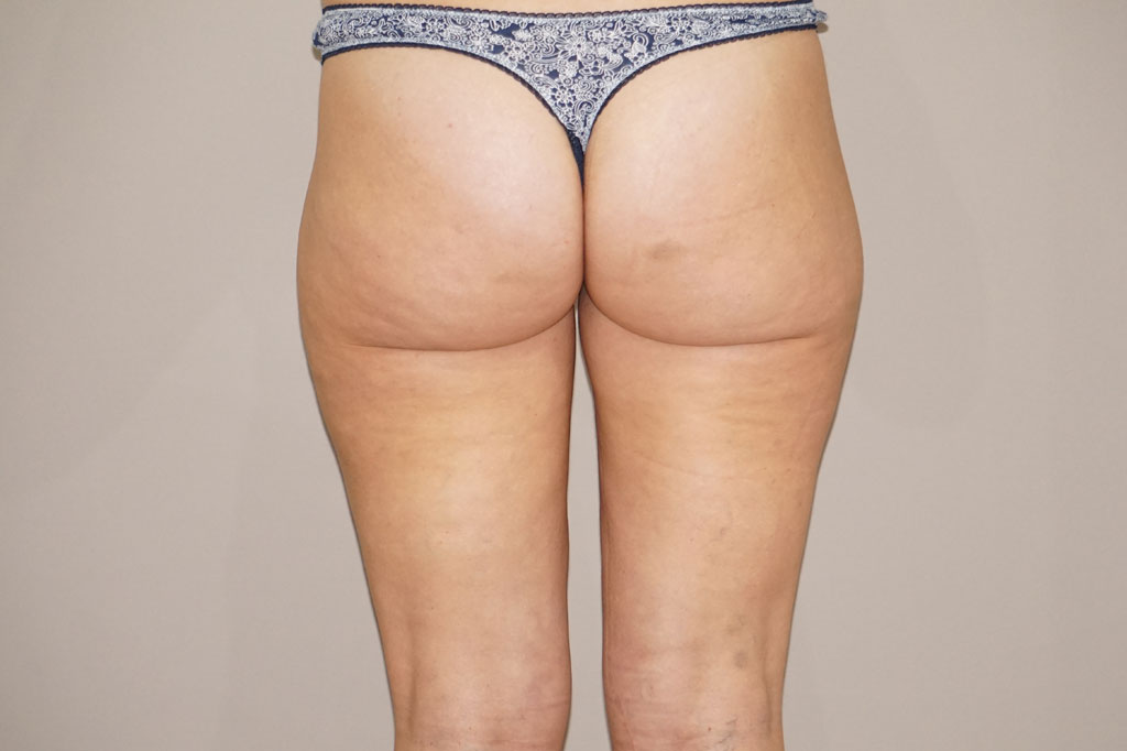 Liposuccion 1 after frontal