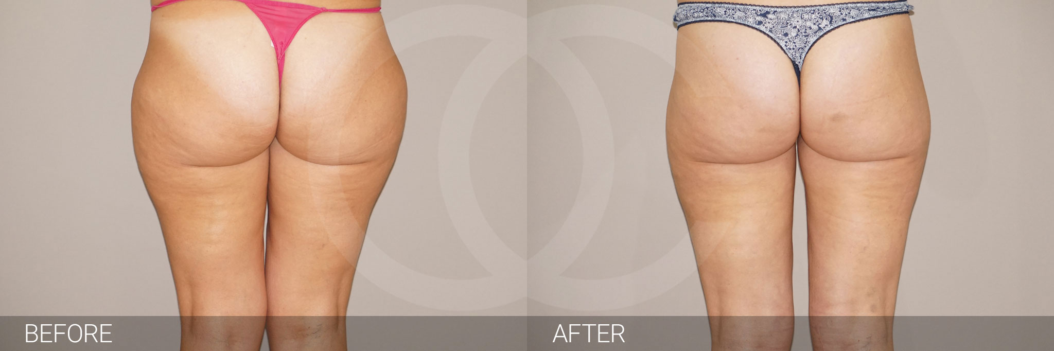 Liposuction Waterjet-assisted Liposuction ante/post-op I